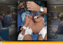 noticias24carabobo-Operación-exitosa,-fueron-separadas-siamesas-en-el-Estado-Zulia--WEB-N24