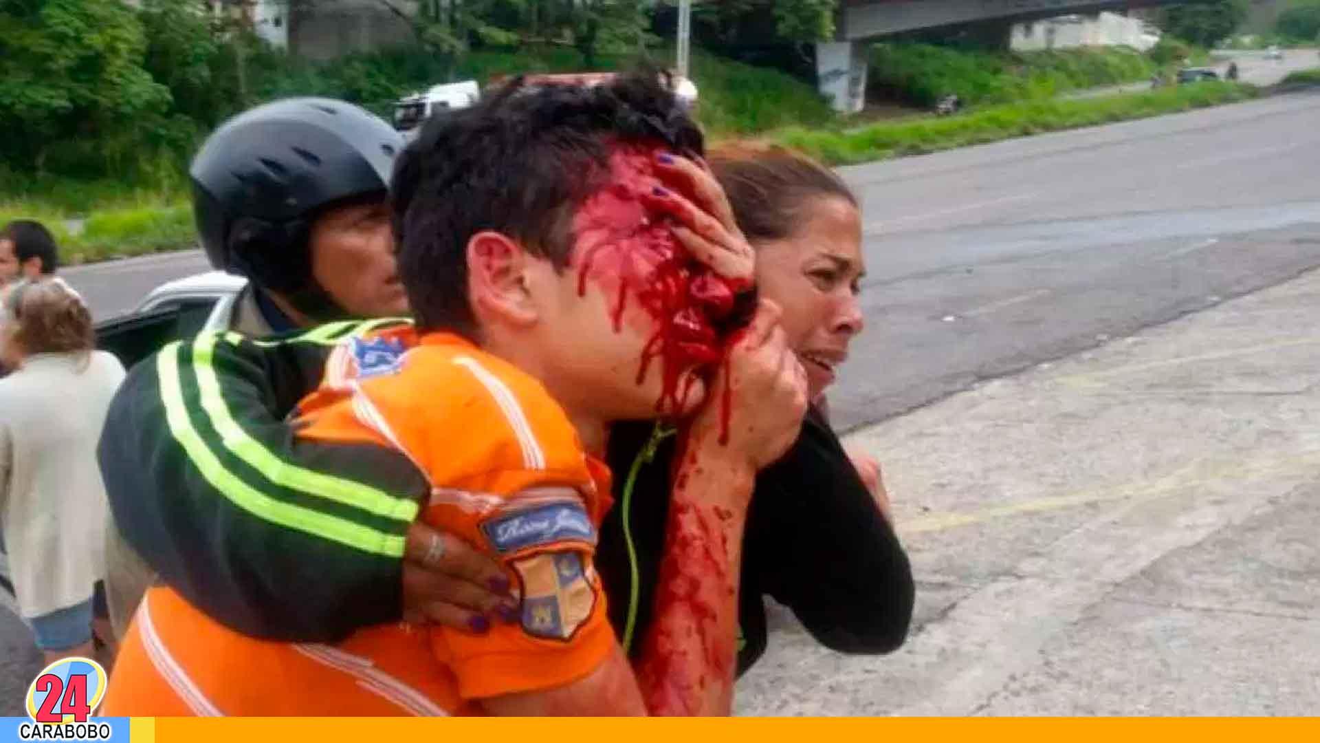 Noticias 24 Carabobo - Dejan ciego a líceista en Táchira