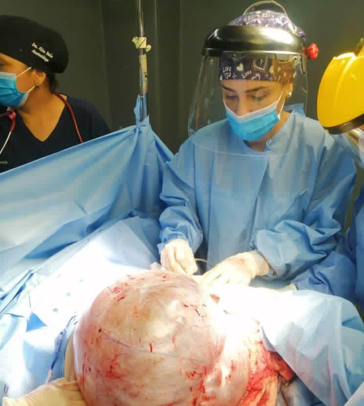 extraen tumor ocho kilos mujer maracaibo