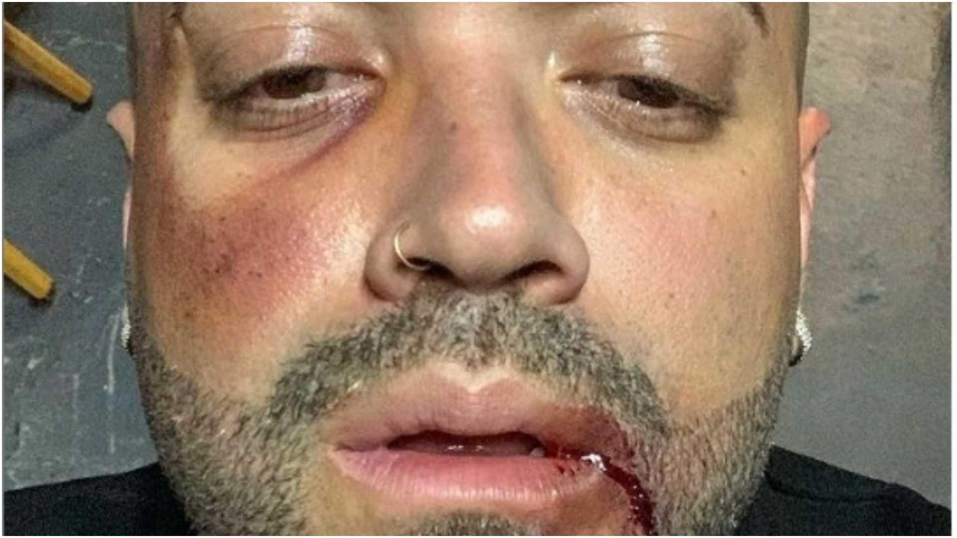 Nacho con el rostro golpeado
