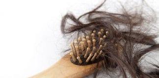 Caída del cabello - Caída del cabello