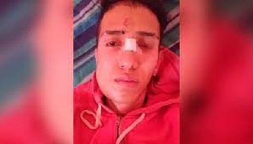 Trabajador venezolano recibió brutal golpiza - Trabajador venezolano recibió brutal golpiza