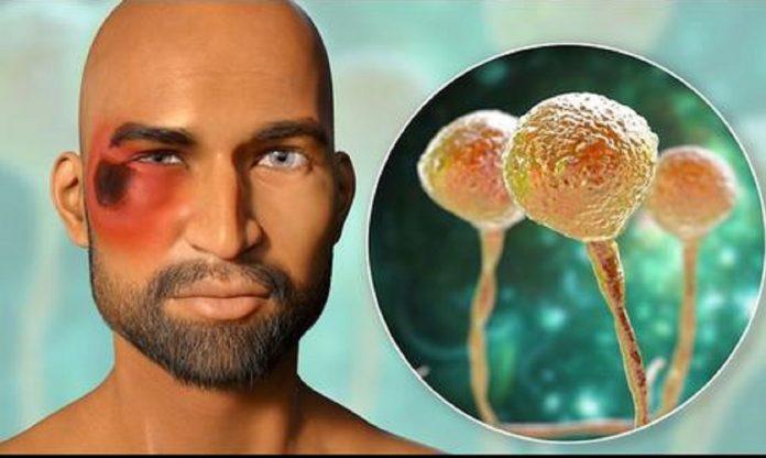 Hongo Negro en la pandemia - Hongo Negro en la pandemia