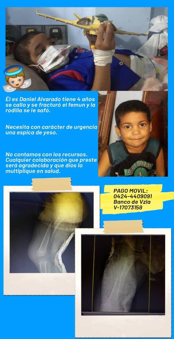 Niño de 4 años presenta fractura de fémur - Niño de 4 años presenta fractura de fémur