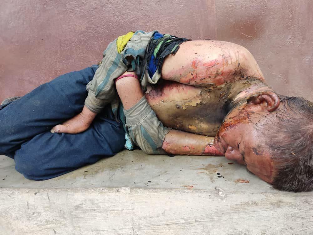 Indigente sufrió quemaduras tras ser rociado - Indigente sufrió quemaduras tras ser rociado