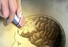 El Alzheimer en Venezuela - El Alzheimer en Venezuela